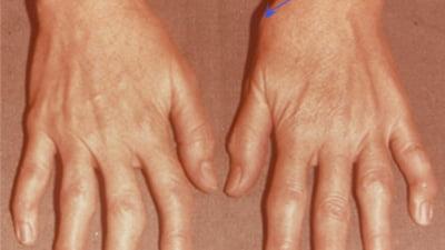 artrita articulațiilor încheieturii