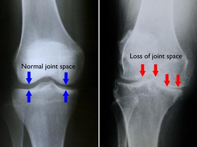 ce să iei cu boala articulară bursita articulației cotului și doare