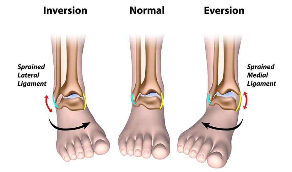 Tratamentul KFS al artrozei