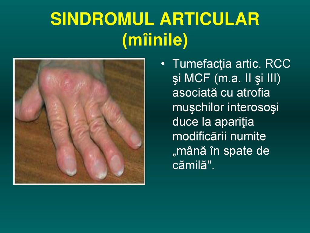 gonartroza genunchiului decât a trata tratamentul comun al artrozei în străinătate