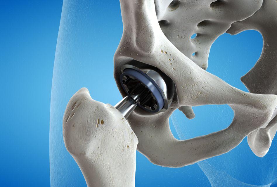 unguent pentru gel de condroxid de osteochondroză cervicală cum să ameliorezi durerile de genunchi noaptea