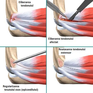 face clic pe articulația umărului fără durere