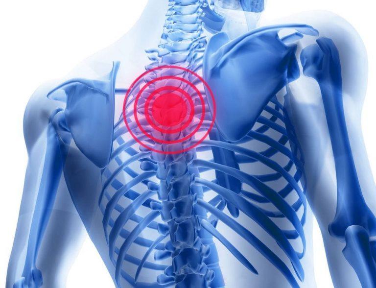 Ce compresă va ajuta cu osteochondroza