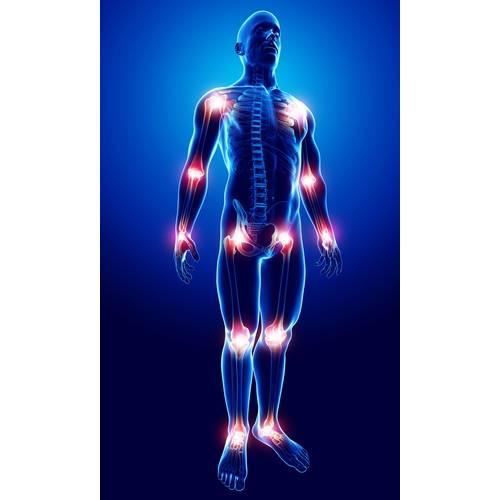 mobilitate și tratament limitat la articulații remedii pentru durerea în articulațiile umărului