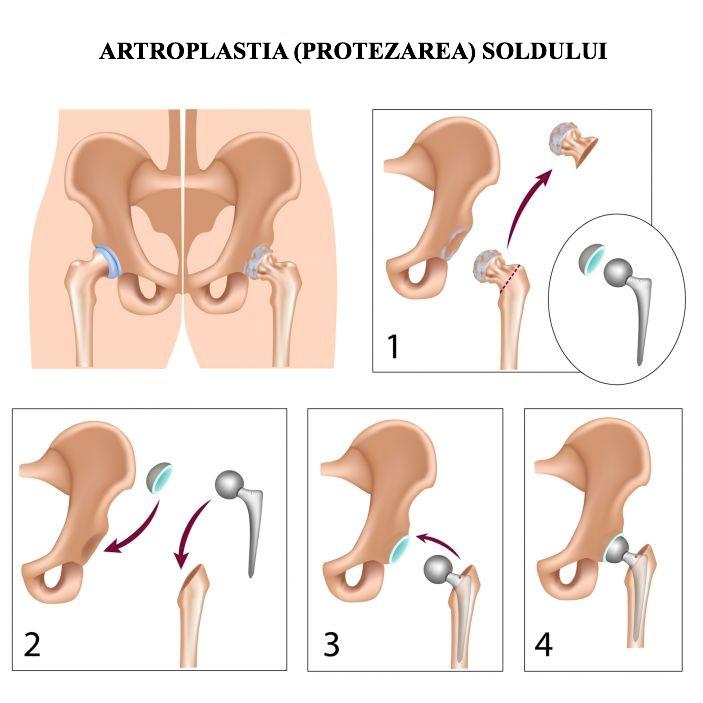 durere în articulațiile antebrațului
