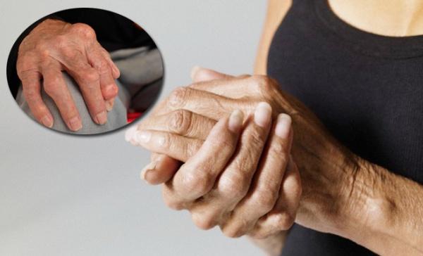 tratament articular revoluționar deteriorarea meniscului intern al genunchiului 3 grade