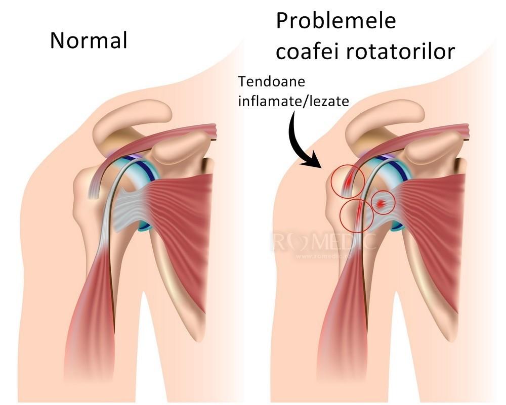 articulația claviculară și bolile acesteia stare de rău și articulații dureroase