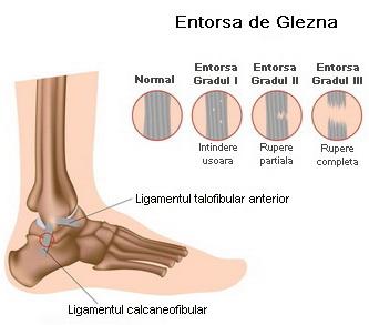 articulația umflată a gleznei nu doare antiinflamatoare pentru bursita articulației genunchiului