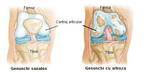 dureri articulare la genunchi de la piciorul inferior