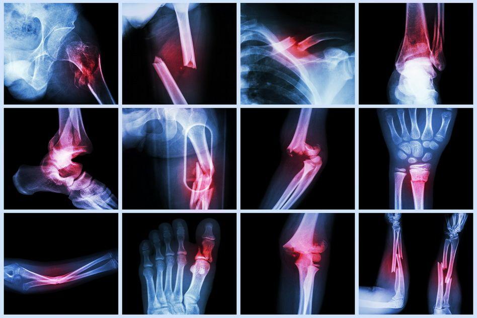 dureri de umăr cu mișcare bruscă