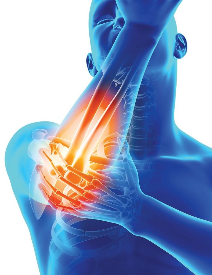 tratamentul hemartrozei articulației cotului ceea ce este posibil cu durerea în articulații