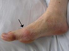 tratamentul artritei gutoase a degetelor de la picioare cu distonie vasculară vegetativă, articulațiile pot răni