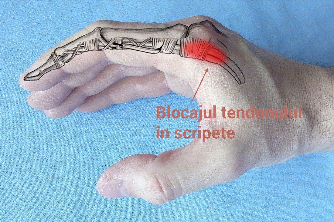 durere în articulațiile mâinilor. cum să se vindece