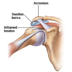 bursita tratamentului articulației umărului drept dureri de șold pe lateral