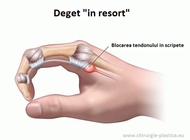 tratamentul bursitei acute a genunchiului