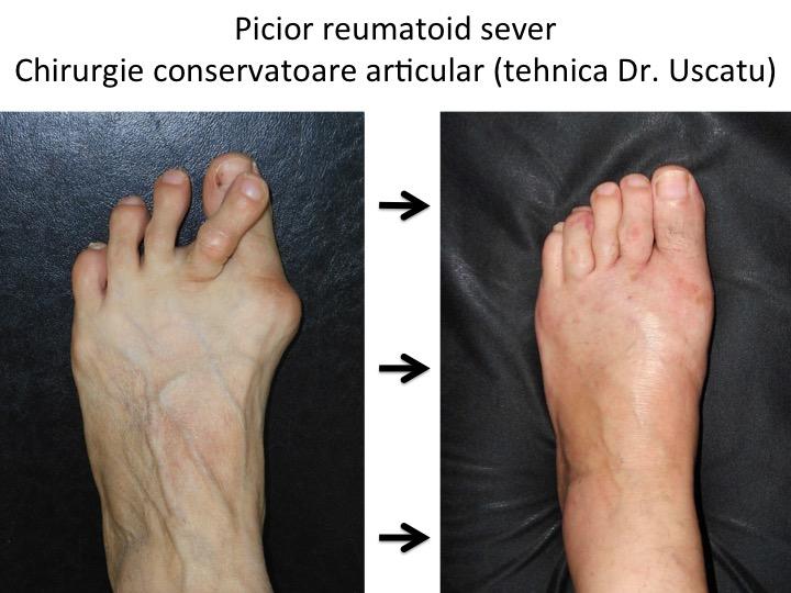 afectarea articulațiilor cu tratamentul artritei reumatoide leziuni la nivelul palmei