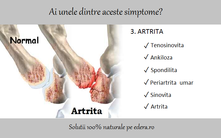 medicament pentru artroza genunchiului
