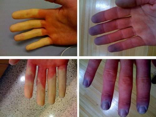 inflamație purulentă a articulației degetului mare