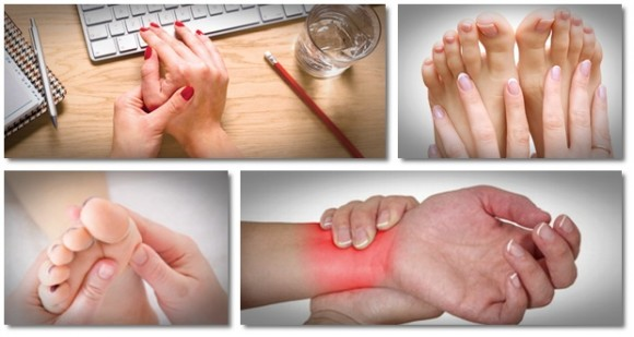 tratamentul artritei gutoase a degetelor de la picioare Suedeza care merge cu artroza genunchiului
