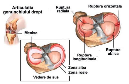 tratamentul artroscopic al afectării meniscului la genunchi amiloidoza si dureri articulare
