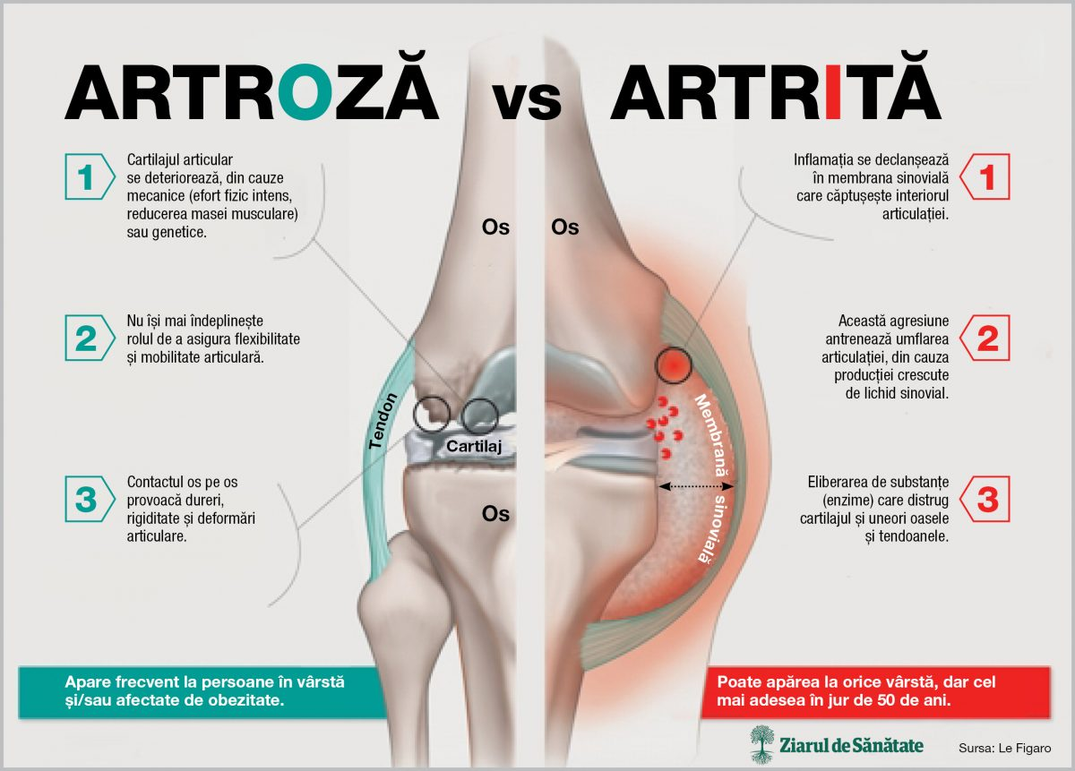 tratamentul artrozei mâinilor și degetelor gel pentru durere la genunchi și articulații