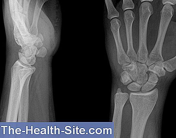 Fractura la mana si patologia osteo articulara a mainii - Clinica Bestetic