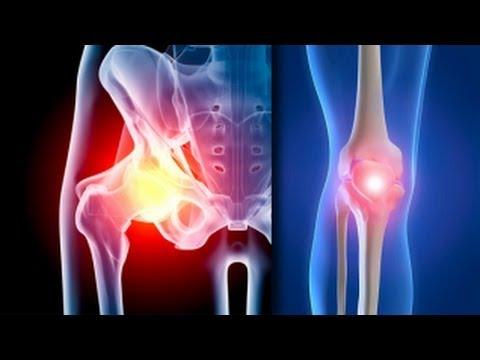 artroza tratamentului gonartrozei genunchiului