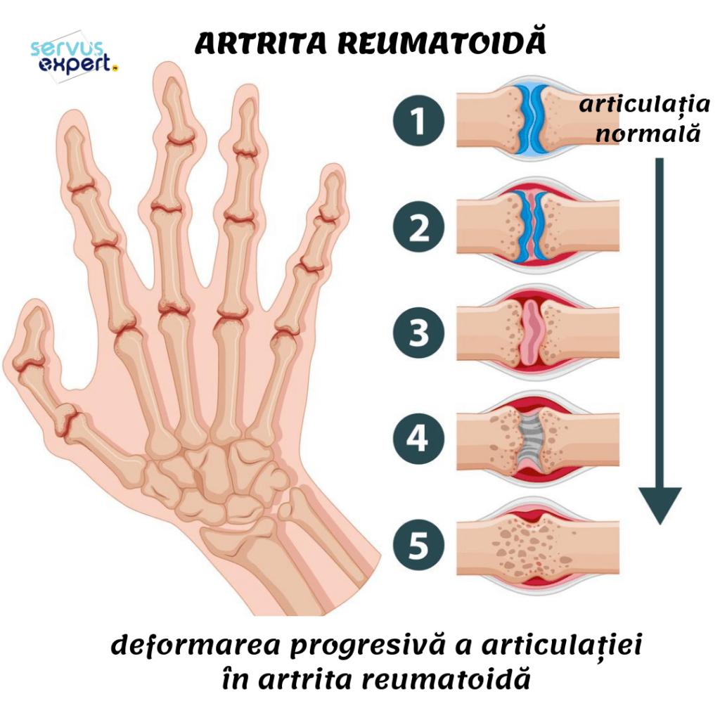artrita reumatoidă pe tratamentul degetelor