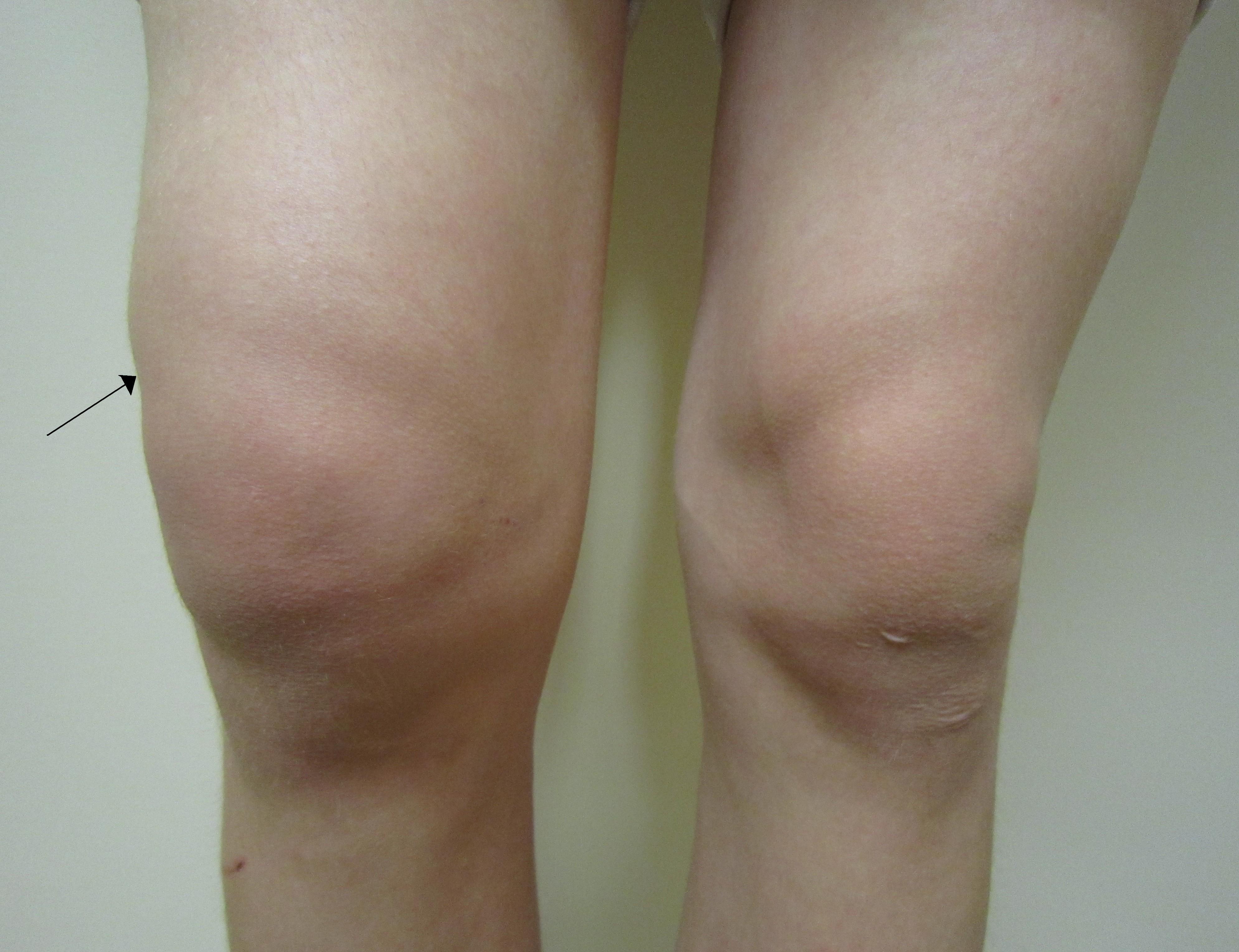 lichid pentru boala genunchiului unguente pentru nevralgie și osteochondroză