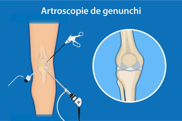 tratamentul edemului măduvei osoase a genunchiului