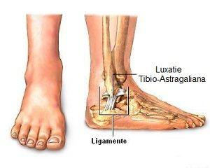 dislocarea articulației gleznei cum se tratează