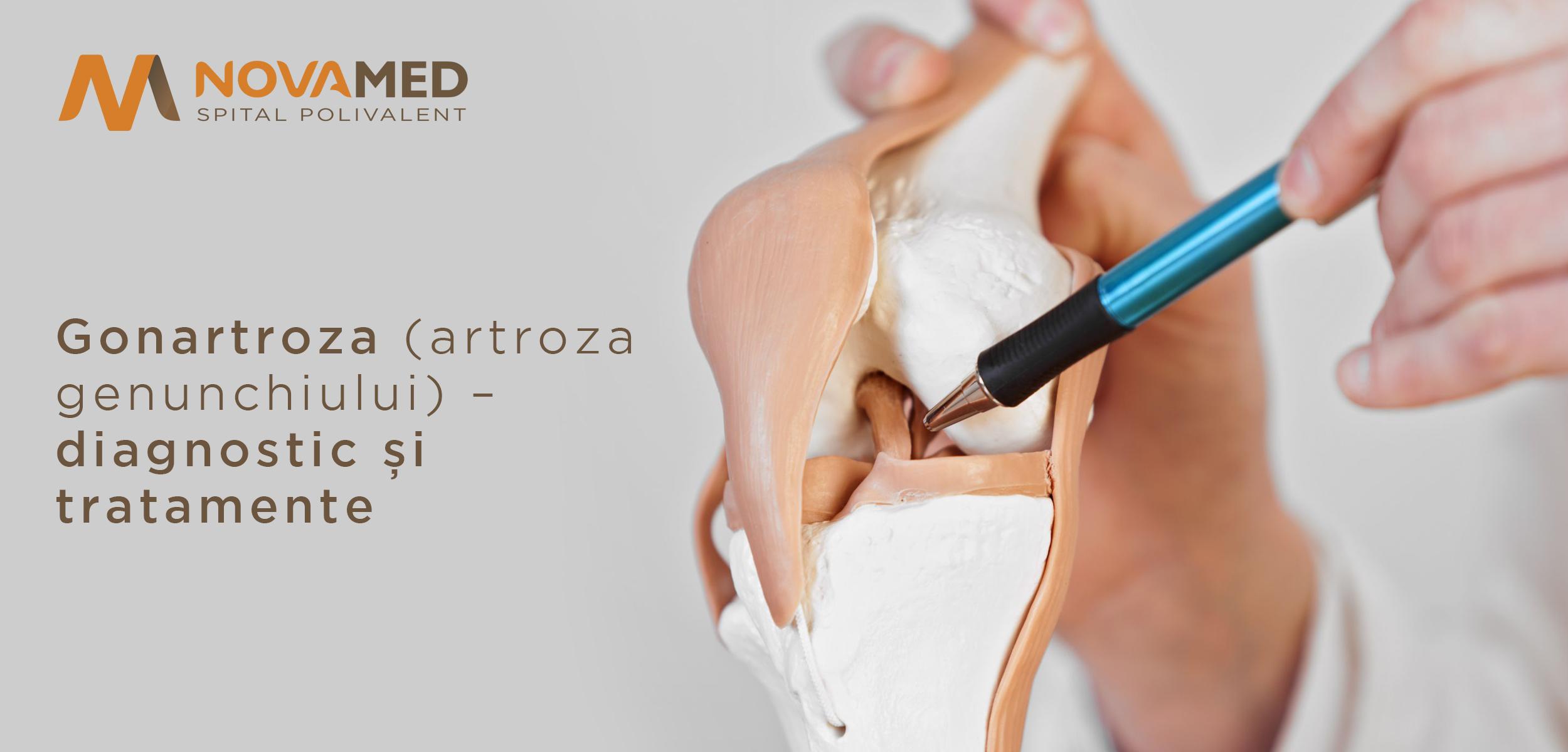 artroza tratamentului gonartrozei genunchiului artroza tratamentului articulației genunchiului cu acid hialuronic