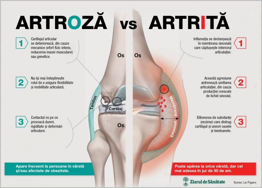 tratament pentru artroza artritei poate fi vindecată artroză de genunchi 1 grad