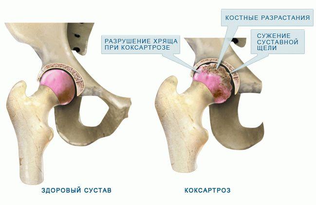 cu deteriorarea ligamentelor articulației genunchiului cum să tratezi picioarele pentru artroză