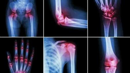 metode de tratament a inflamațiilor articulare