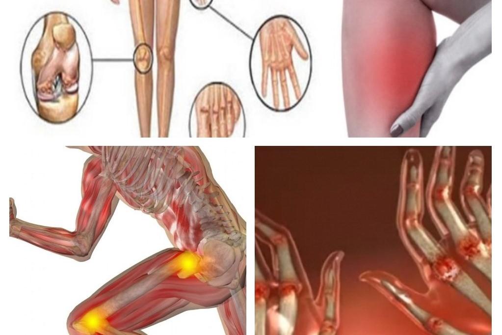 agravarea artritei decât a trata cauzele artrozei articulației gleznei