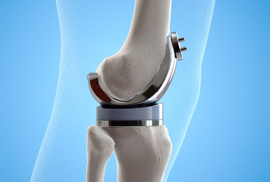 anestezia artrozei genunchiului
