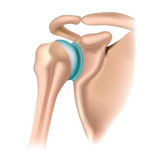 articulația claviculară și bolile acesteia condroitină bună glucozamină