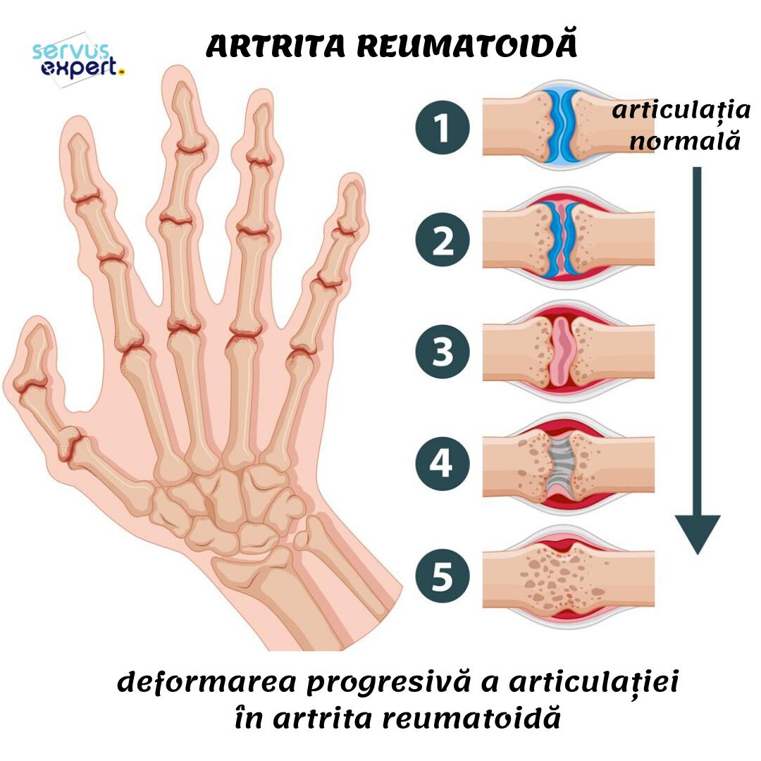 articulația din mână doare