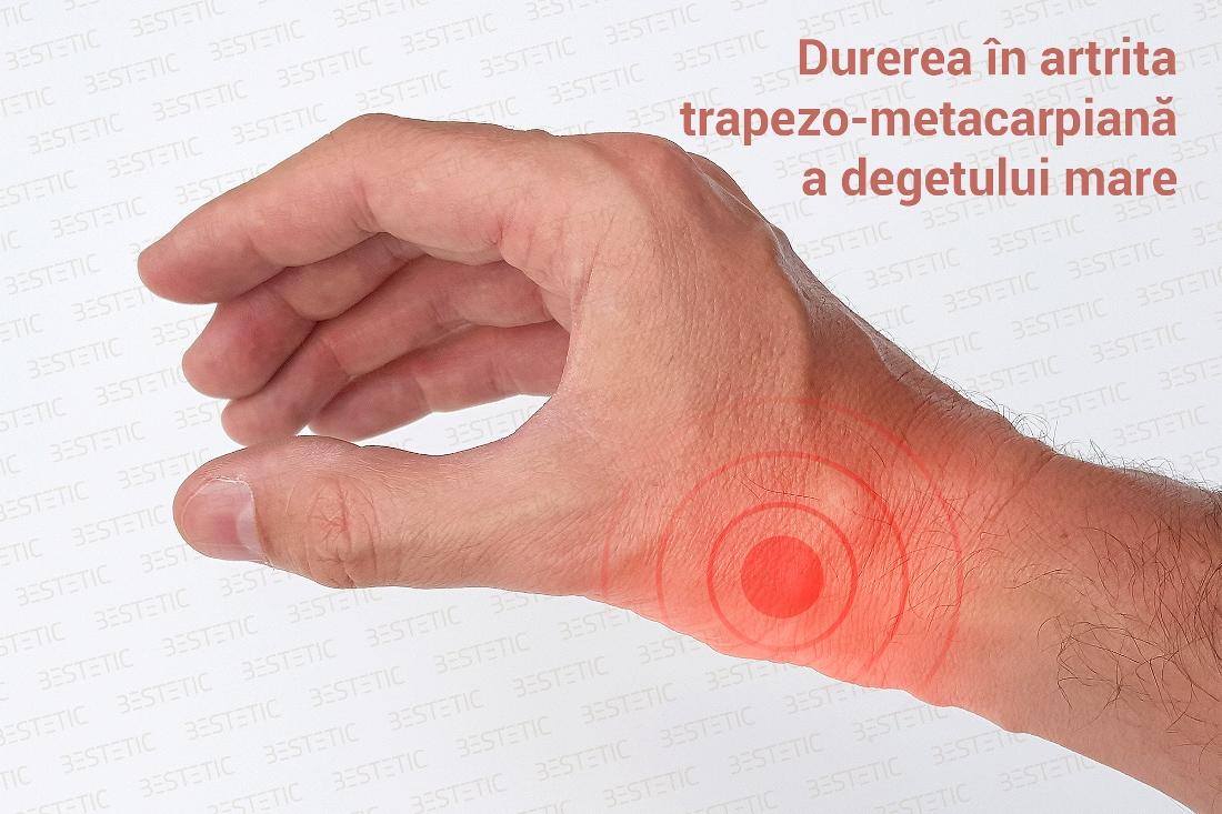 articulațiile în mâna rănite