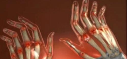articulațiile rigide și durerea într-o mână