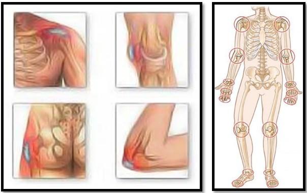 deformarea simptomelor artrozei și a tratamentului afectarea nervilor în articulația gleznei