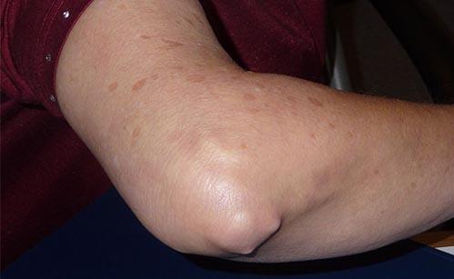 artrita reumatoidă a articulațiilor cotului