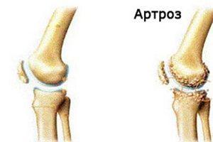 artroza a doua etapă a genunchiului boli articulare tipuri de artroză