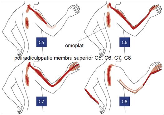 articulațiile din brațe au început să doară durere în articulațiile genunchilor și pelvisului