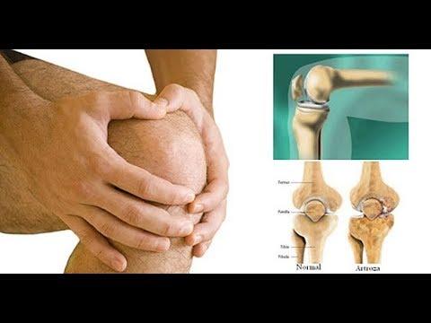 artroza tratamentului ambelor articulații la genunchi deteriorarea mușchilor și tendoanelor articulației umărului