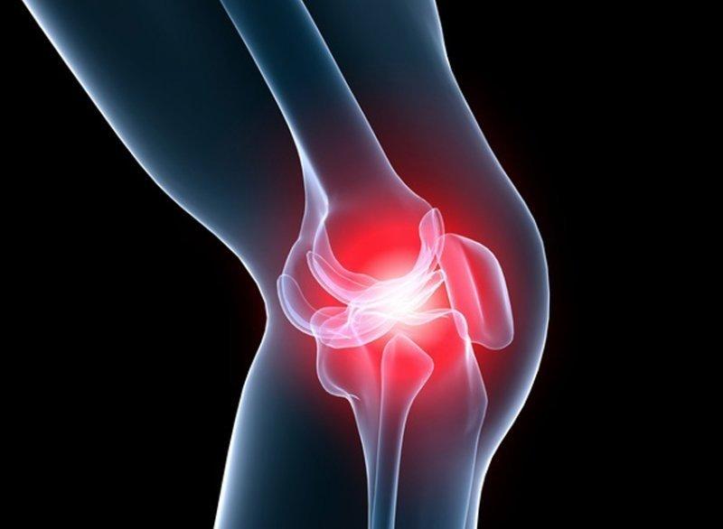 ameliorați umflarea și durerea articulației genunchiului cum este tratată artrita de umăr
