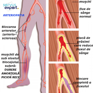 blocaj pentru dureri de gleznă artroza deformantă a șoldului care s-a vindecat