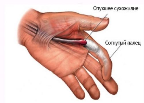 dureri articulare pe partea stângă