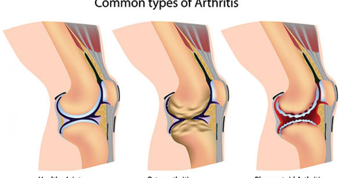 ce pastile ameliorează durerile articulare tratamentul artrozei articulațiilor genunchiului și șoldului